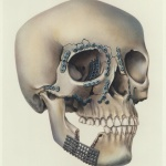 Skull Fixation